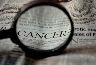 Cancerul mamar masculin