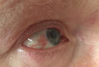 Fără tratament, zona zoster oculară poate duce la probleme grave, inclusiv pierderea vederii pe termen lung și cicatrizarea permanentă din cauza umflarii corneei.FOTO Wikipedia
