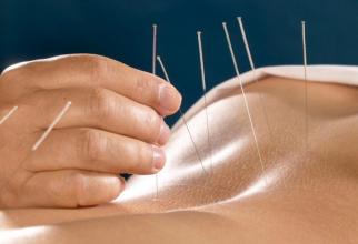 Acupunctura       Sursa foto: antena3.ro
