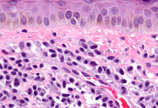Mastocitoza        Foto: wikipedia.org