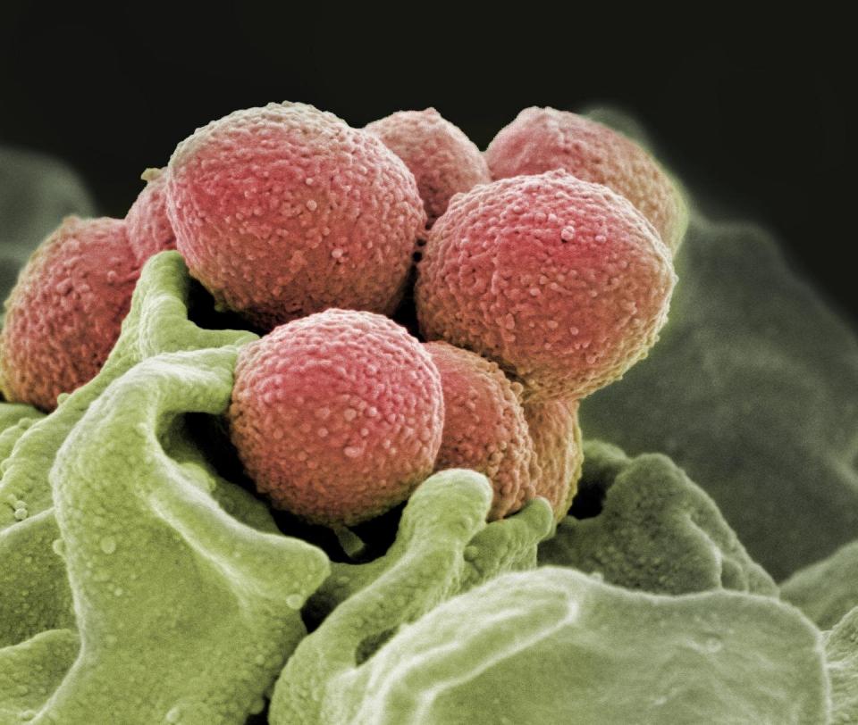 Streptococ, mutatii genetice      Sursa foto: medicalxpress.com