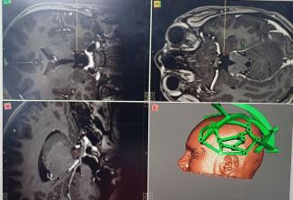 Implantare electrozi epilepsie Foto: SUUB