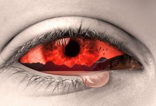 Pierderea vederii