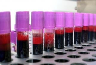 Grupă sanguină
