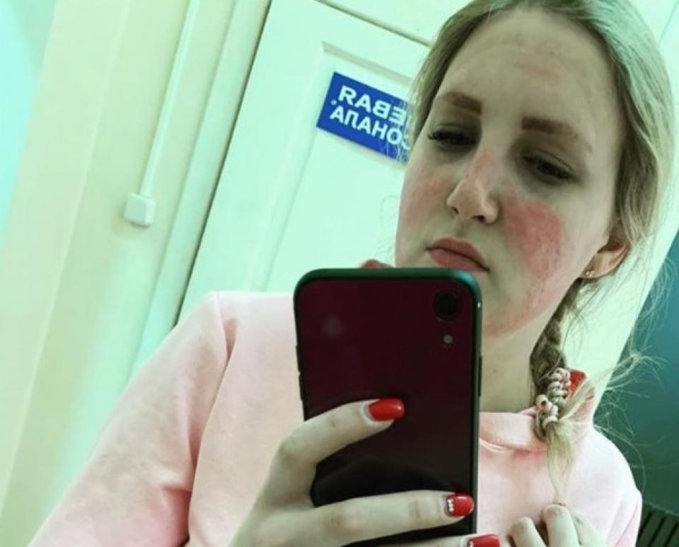 Tânăra a suferit arsuri pe față din cauza dezinfectantului utilizat