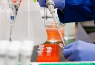 O simplă analiză de sânge îți spune dacă suferi de BOLI GRAVE! Uită de biopsie, FOTO pexels