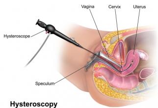 Histeroscopia. Foto: Bruce Blaus / Wikipedia