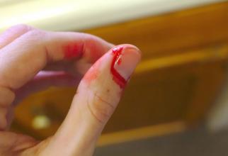 Hemofilia provoacă sângerări care sunt greu de oprit. Foto: Pixabay