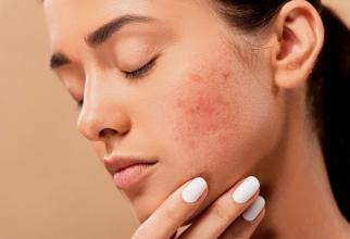 Dermatita atopică. Foto: Pixabay