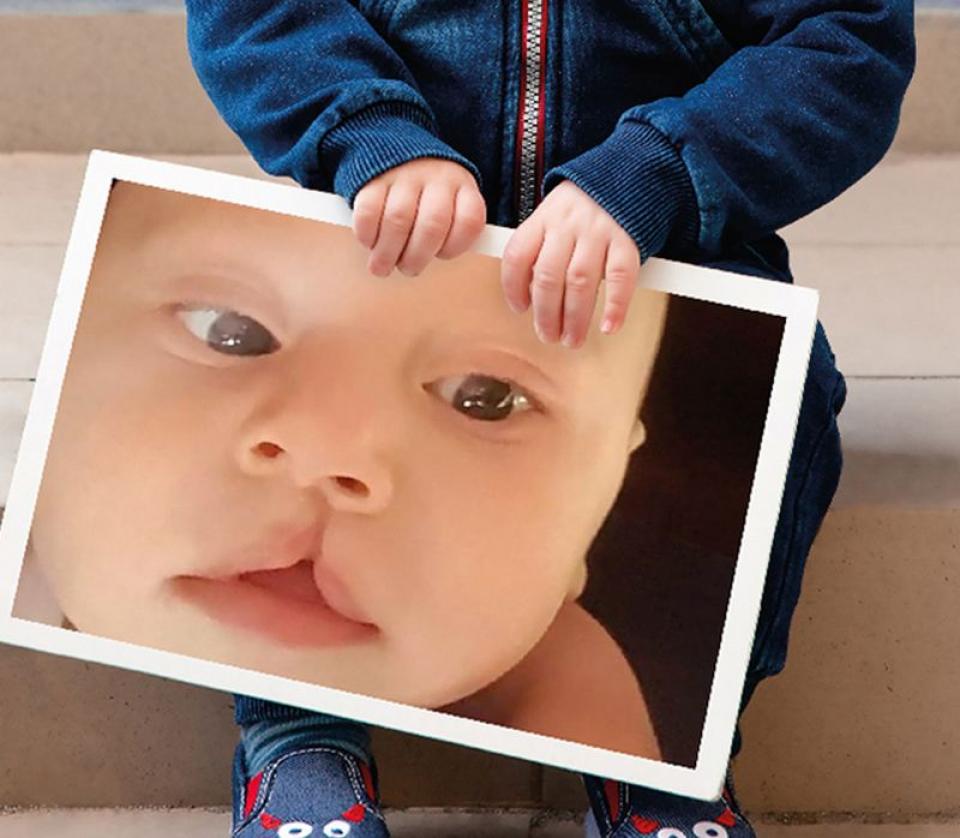 Copil cu despicătură de buză și de palat. Foto: GSK