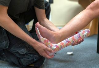 Cum se tratează o luxatie, o fractură sau o entorsă de gleznă. Foto: Pexels