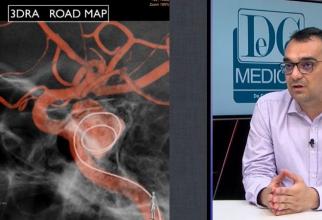 Dr Cristian Mihalea a epxlicat cu se tratează anevrismul cerebral