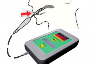 Cum funcționează aparatul.  Foto: Wake Forest Baptist Medical Center