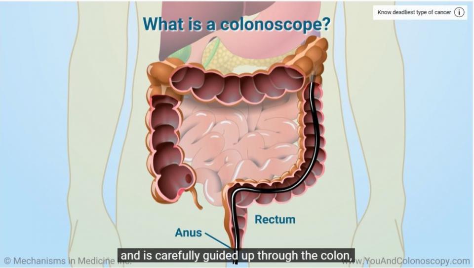 "Colonoscopie. Foto: Print screen ""You and Colonoscopy""/ Youtube"