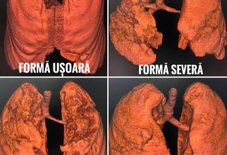 Tomografii a unor plămâni sănătăoși și a altora bolnavi de COVID  FOTO: Facebook RoVaccinare