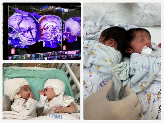 Gemenii s-au născut cu craniile unite la bază. Fotografii colaj:  Soroka Medical Center in Be'er Sheva