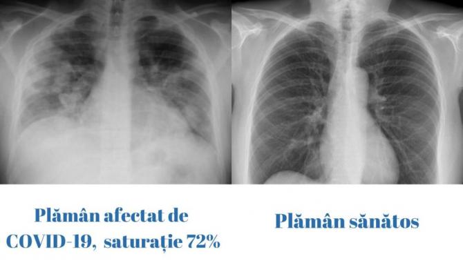 Plămân afectat de COVID-19 (stânga) și plămân normal (dreapta). Foto: #rovaccinare